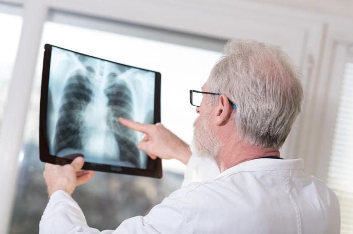 Zapalenie płuc bezobjawowe